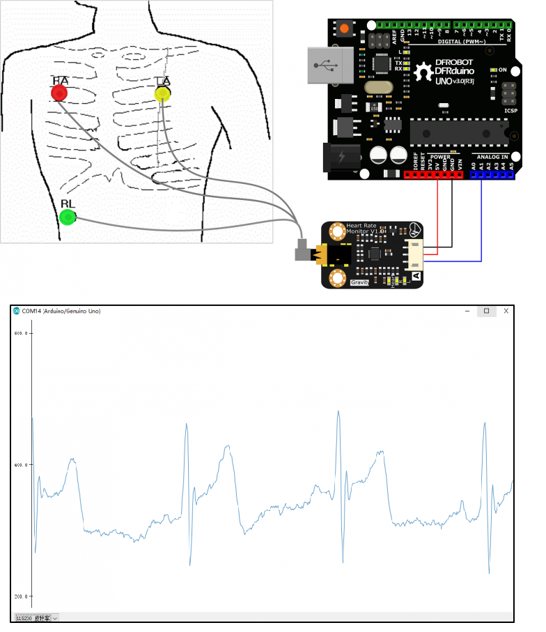 Gravity: Arduino Heart Rate Monitor Sensor (ECG) -DFRobot